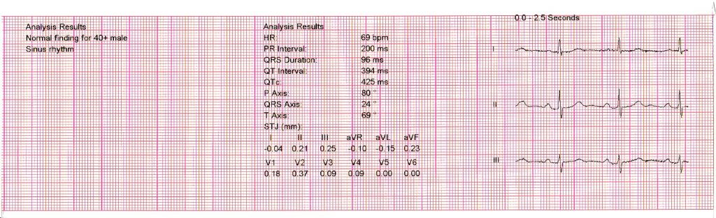 part of the ECG trace
